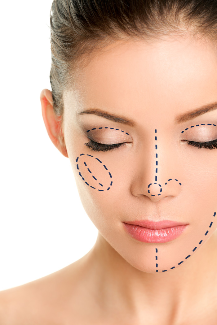 plastic-surgery-lines-on-woman-face